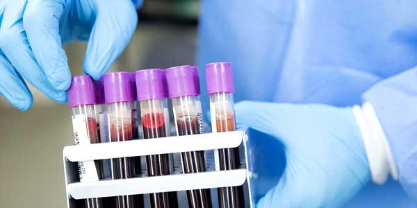 Ещё три подтвержденных случая заражения коронавирусом в Нижегородской области