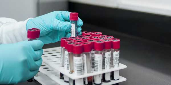 Сразу 13 новых случаев заражения коронавирусом выявлено в Нижегородской области